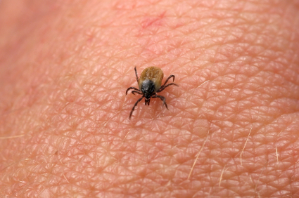 Lyme Disease: Misdiagnosed, Underreported—and Epidemic
