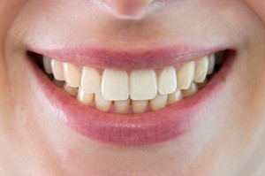 How a Tooth-Whitening Lawsuit Landed before the Supreme Court
