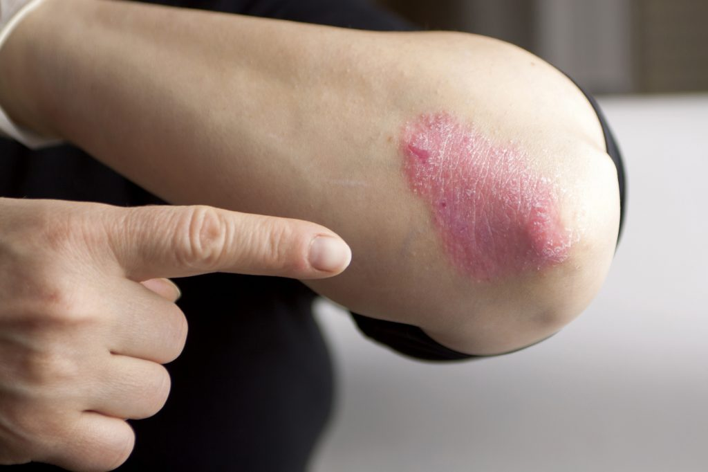 Has the Cause of Psoriasis Been Found?
