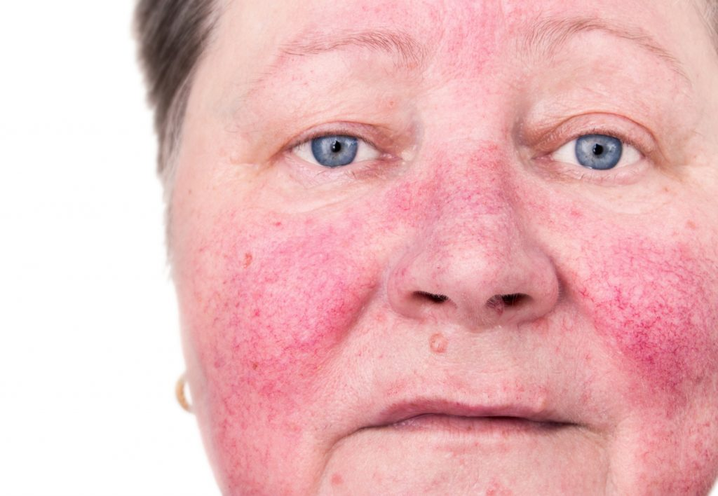 Curing Acne Rosacea, Improving Overall Health