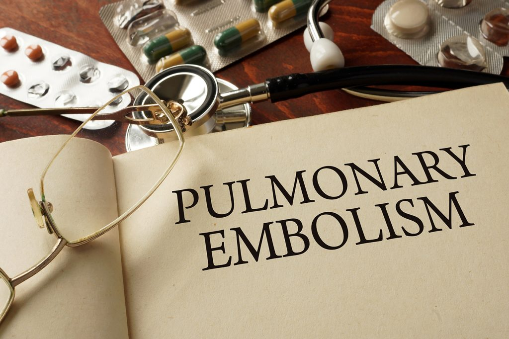 Xeljanz and pulmonary embolism and pulmonary thrombosis